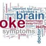 FREE Public Talk on Recovering from and Living with Stroke | Croi Heart & Stroke Disease